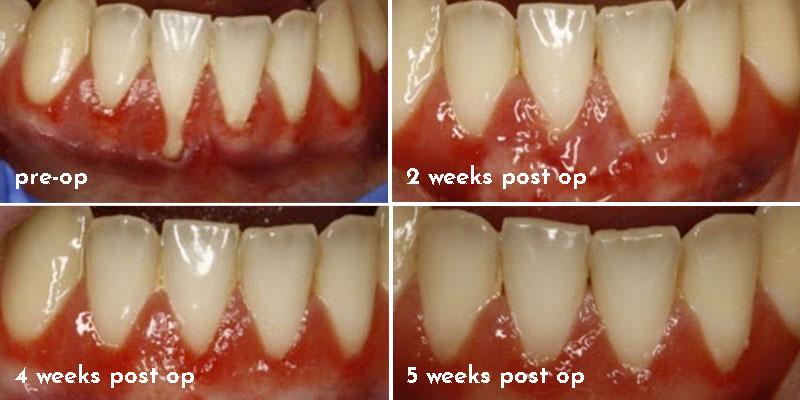 Periodontal Plastic Surgery Soft Tissue Grafting Elite Dental Specialists Aurora Geneva Plainfield Il